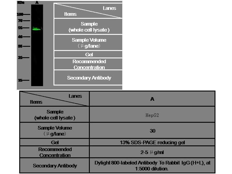 Western Blotting (WB) image for anti-AGT antibody (Angiotensinogen (serpin Peptidase Inhibitor, Clade A, Member 8)) (AA 1-485) (ABIN1997925)