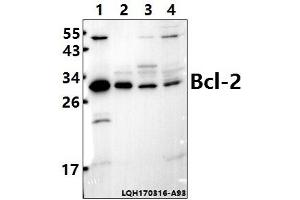 Image no. 1 for anti-B-Cell CLL/lymphoma 2 (BCL2) (AA 31-80) antibody (ABIN6712055)