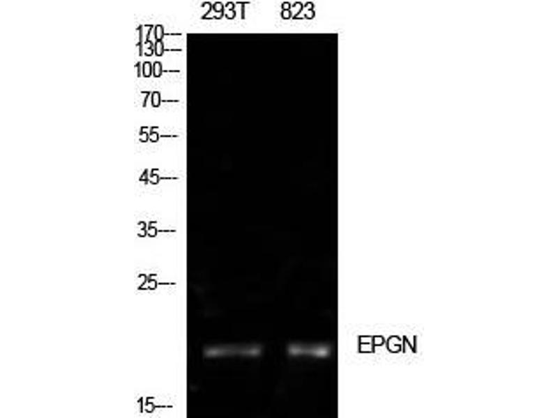 Western Blotting (WB) image for anti-EPGN Antikörper (Epithelial Mitogen Homolog (Mouse)) (Internal Region) (ABIN3181493)