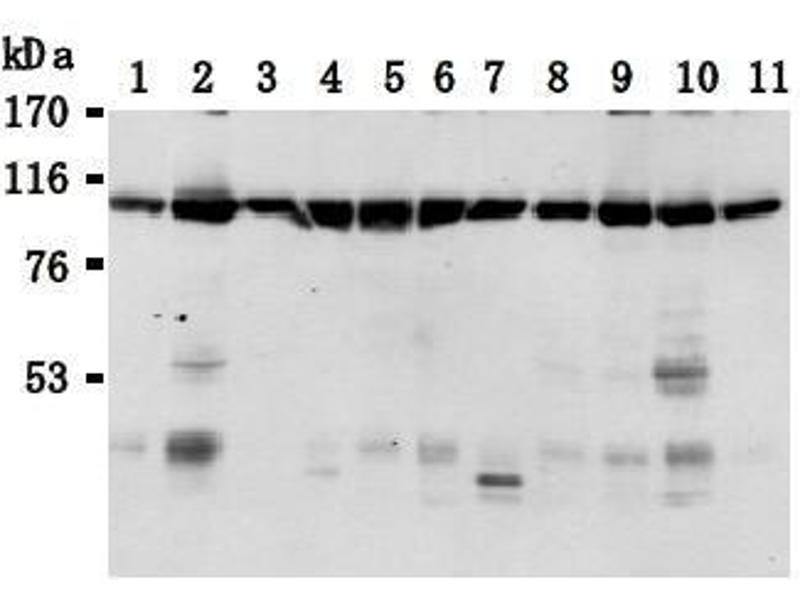 Western Blotting (WB) image for anti-Transportin 1 (TNPO1) antibody (ABIN1449198)