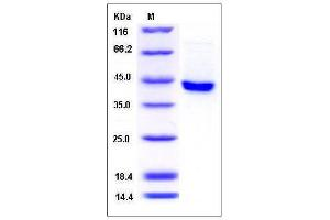 Image no. 1 for serpin Peptidase Inhibitor, Clade B (Ovalbumin), Member 8 (SERPINB8) (AA 1-374) protein (His tag) (ABIN2007524)