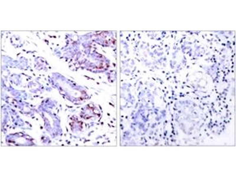 Immunohistochemistry (IHC) image for anti-Signal Transducer and Activator of Transcription 1, 91kDa (STAT1) (AA 668-717) antibody (ABIN1533008)