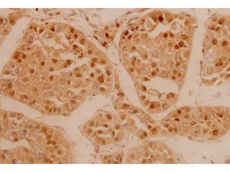 Immunohistochemistry (Paraffin-embedded Sections) (IHC (p)) image for anti-FGFR3 antibody (Fibroblast Growth Factor Receptor 3) (ABIN407668)
