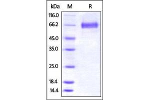 Image no. 1 for Tumor Necrosis Factor (Ligand) Superfamily, Member 9 (TNFSF9) (AA 104-309) (Active) protein (Fc Tag) (ABIN2870709)
