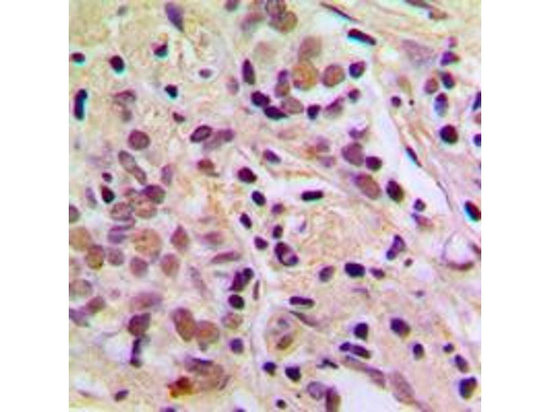 Immunohistochemistry (IHC) image for anti-Apoptosis Antagonizing Transcription Factor (AATF) (N-Term) antibody (ABIN2707295)