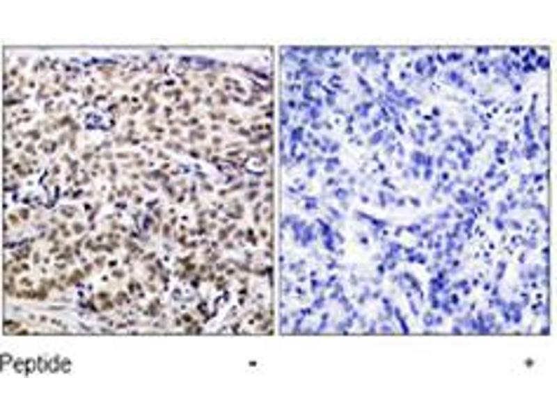 Immunohistochemistry (IHC) image for anti-cAMP Responsive Element Binding Protein 1 (CREB1) antibody (ABIN546199)