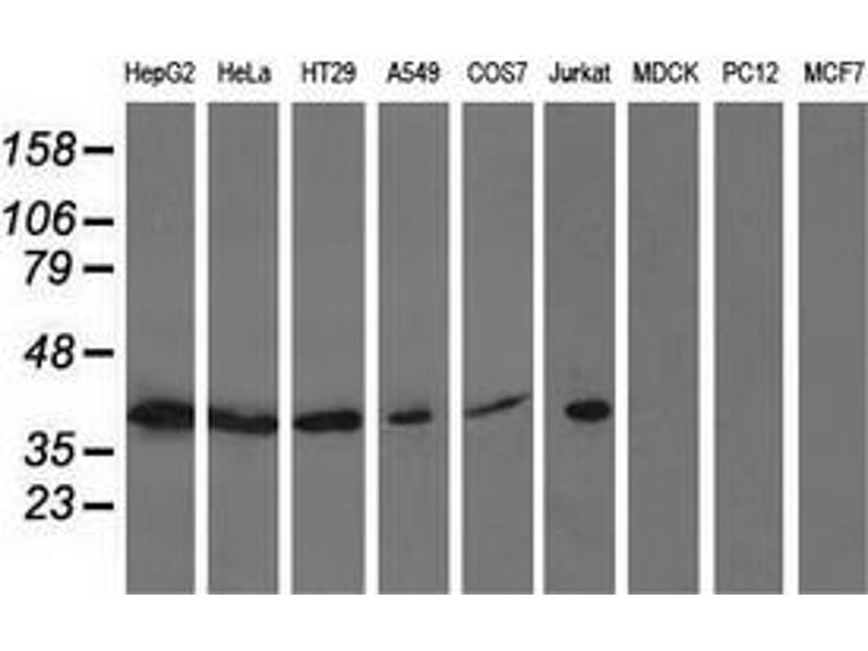 Image no. 3 for anti-Acetyl-CoA Acetyltransferase 2 (ACAT2) antibody (ABIN2715657)