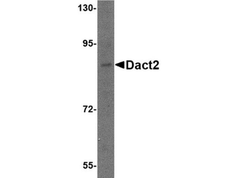 Western Blotting (WB) image for anti-Dapper, Antagonist of beta-Catenin, Homolog 2 (Xenopus Laevis) (DACT2) (N-Term) antibody (ABIN499702)