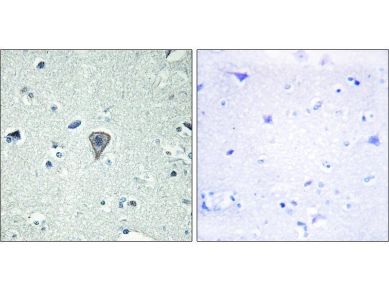 Image no. 1 for anti-Endothelin B Receptor Protein 2 (ETBR2) (Internal Region) antibody (ABIN1576381)
