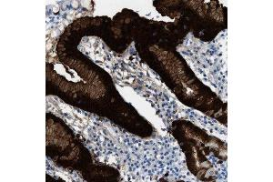 Immunohistochemistry (Paraffin-embedded Sections) (IHC (p)) image for anti-S100 Calcium Binding Protein P (S100P) antibody (ABIN4351825)