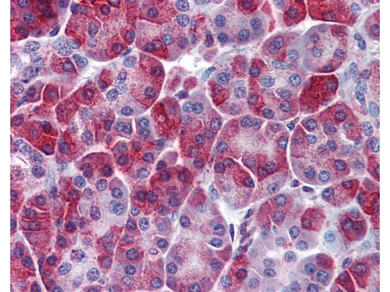 Immunohistochemistry (IHC) image for anti-SQSTM1 antibody (Sequestosome 1) (Middle Region) (ABIN2785619)