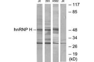 Image no. 1 for anti-Heterogeneous Nuclear Ribonucleoprotein H1 (H) (HNRNPH1) (AA 156-205) antibody (ABIN1533790)