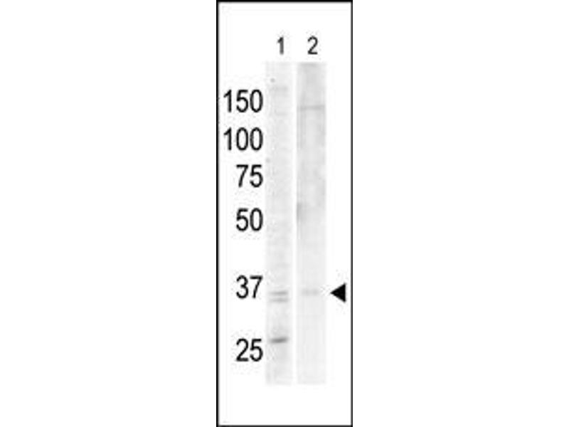 Western Blotting (WB) image for anti-PRKACA antibody (Protein Kinase A, alpha) (N-Term) (ABIN359056)