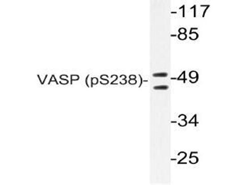 Western Blotting (WB) image for anti-Vasodilator-Stimulated phosphoprotein (VASP) (pSer238) antibody (ABIN498713)