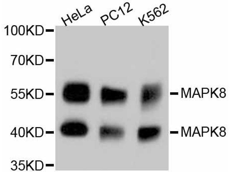 Western Blotting (WB) image for anti-Mitogen-Activated Protein Kinase 8 (MAPK8) antibody (ABIN5997048)