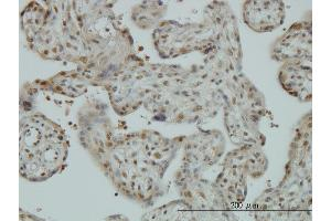 Immunostaining (ISt) image for anti-Cullin-Associated and Neddylation-Dissociated 1 (CAND1) (AA 1-100), (partial) antibody (ABIN565932)