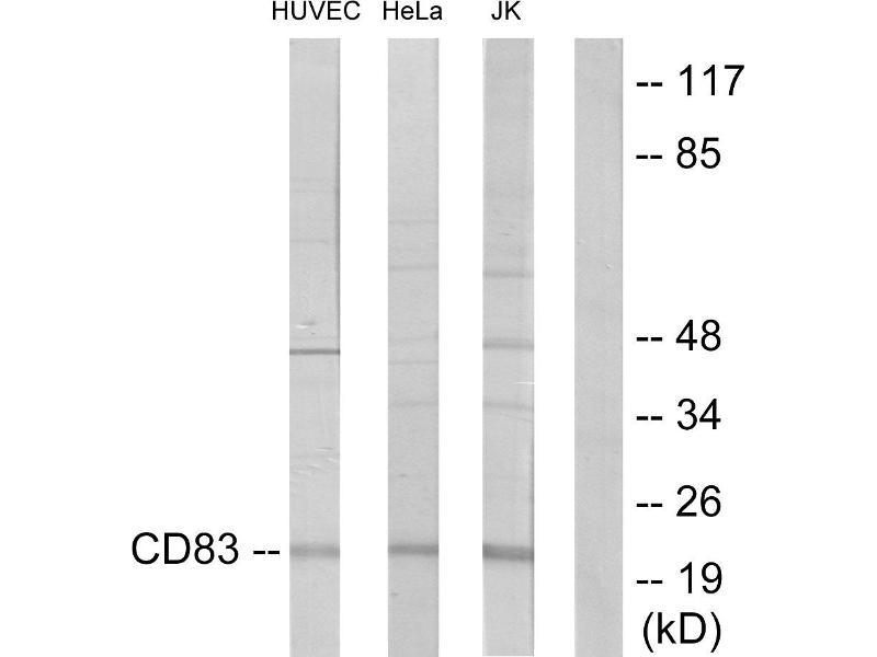 Western Blotting (WB) image for anti-CD83 antibody (CD83) (ABIN2163441)