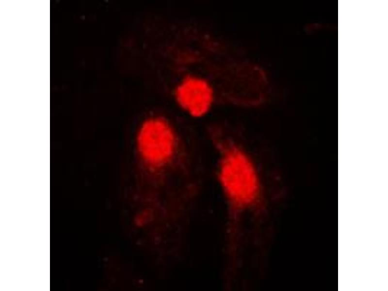 Image no. 1 for anti-SMAD, Mothers Against DPP Homolog 3 (SMAD3) (pSer204) antibody (ABIN2707069)