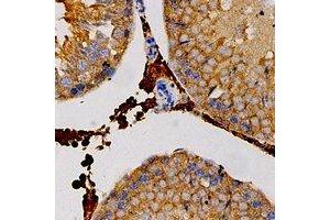 Image no. 1 for anti-Carbonic Anhydrase III (CA3) antibody (ABIN3197925)