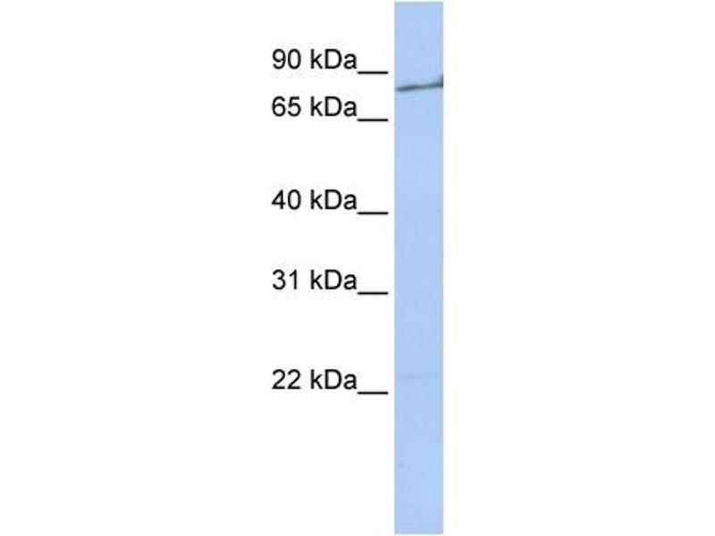 Western Blotting (WB) image for anti-Coagulation Factor II (thrombin) (F2) (Middle Region) antibody (ABIN2776976)