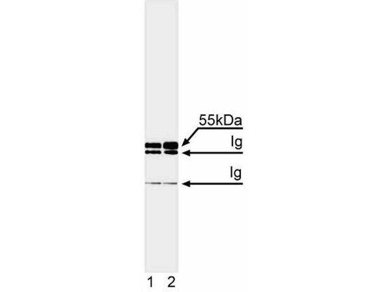 Western Blotting (WB) image for anti-Caspase 8 antibody (Caspase 8, Apoptosis-Related Cysteine Peptidase) (full length) (ABIN967335)