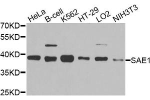 Image no. 1 for anti-SUMO1 Activating Enzyme Subunit 1 (SAE1) antibody (ABIN6572096)