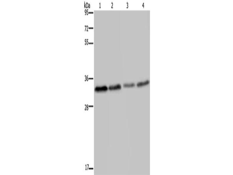 Western Blotting (WB) image for anti-Toll-Like Receptor Adaptor Molecule 2 (TICAM2) antibody (ABIN2423633)