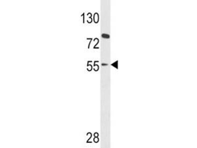Western Blotting (WB) image for anti-Paired Box 8 (PAX8) (AA 285-313) antibody (ABIN3032136)