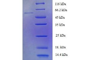 Image no. 1 for Pyruvate Dehyrogenase Phosphatase Catalytic Subunit 2 (PDP2) (AA 67-529) protein (His tag) (ABIN5711819)
