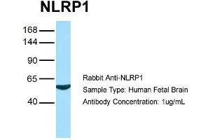 Image no. 1 for anti-NLR Family, Pyrin Domain Containing 1 (NLRP1) (N-Term) antibody (ABIN2785731)