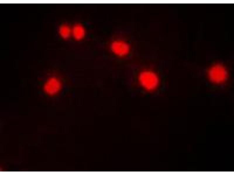 Image no. 1 for anti-Dual-Specificity tyrosine-(Y)-phosphorylation Regulated Kinase 1A (DYRK1A) (N-Term) antibody (ABIN2707485)