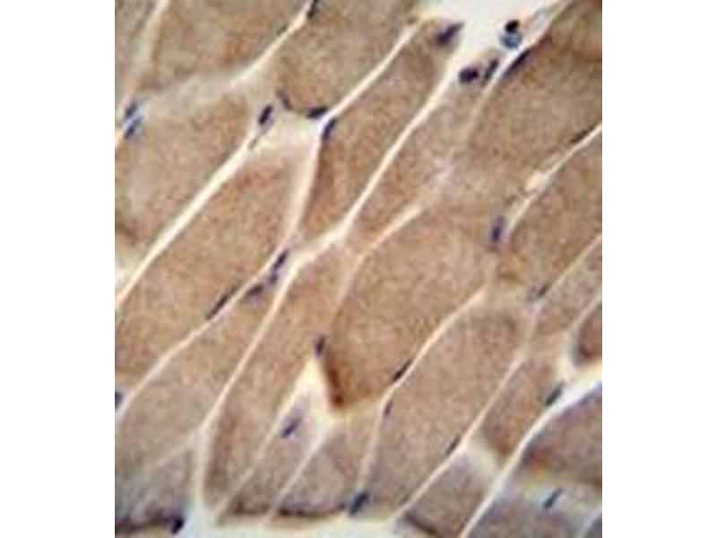 Immunohistochemistry (Paraffin-embedded Sections) (IHC (p)) image for anti-Engulfment and Cell Motility 2 (ELMO2) (AA 330-357), (Middle Region) antibody (ABIN952066)