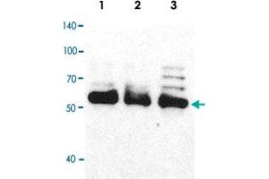 Image no. 5 for anti-Heterogeneous Nuclear Ribonucleoprotein H1 (H) (HNRNPH1) antibody (ABIN5580062)