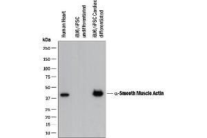 Western Blotting (WB) image for anti-Actin, alpha 2, Smooth Muscle, Aorta (ACTA2) antibody (ABIN4900586)
