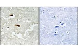 Immunohistochemistry (IHC) image for anti-Nuclear Factor-KB P65 (NFkBP65) (AA 502-551) antibody (ABIN1532957)
