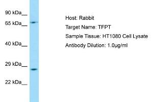 Image no. 1 for anti-TCF3 (E2A) Fusion Partner (In Childhood Leukemia) (TFPT) (C-Term) antibody (ABIN2790045)