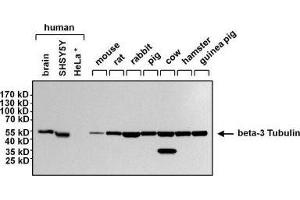 Western Blotting (WB) image for anti-Tubulin, Beta, 3 (TUBB3) antibody (ABIN4284545)