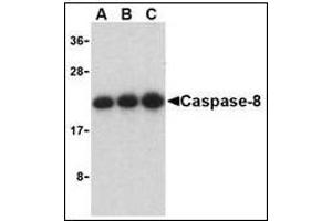 Western Blotting (WB) image for anti-Caspase 8 antibody (Caspase 8, Apoptosis-Related Cysteine Peptidase) (C-Term) (ABIN615326)