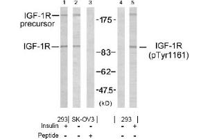Western Blotting (WB) image for anti-IGF1R antibody (Insulin-Like Growth Factor 1 Receptor) (ABIN257345)
