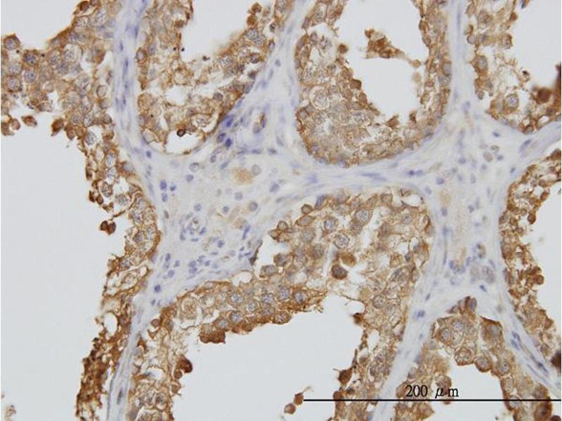 Immunohistochemistry (IHC) image for anti-Tubulin, Alpha, 3C (TUBA3C) (AA 1-419) antibody (ABIN396000)