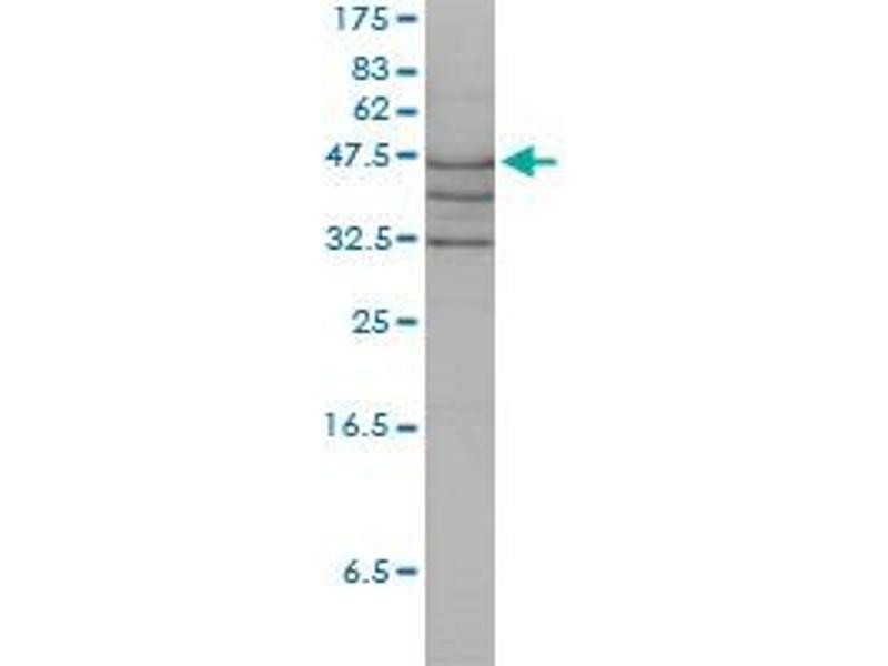 Western Blotting (WB) image for anti-Argininosuccinate Lyase (ASL) (AA 1-464), (full length) antibody (ABIN559965)
