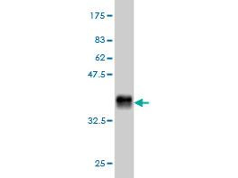 Western Blotting (WB) image for anti-Growth Hormone Receptor (GHR) (AA 19-119) antibody (ABIN395765)
