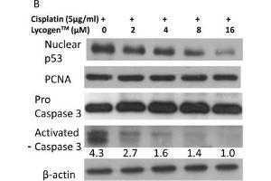 Image no. 11 for anti-Proliferating Cell Nuclear Antigen (PCNA) (Center) antibody (ABIN2854788)