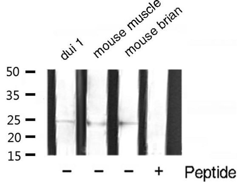 Image no. 1 for anti-Metalloproteinase Inhibitor 2 (TIMP2) antibody (ABIN6269428)