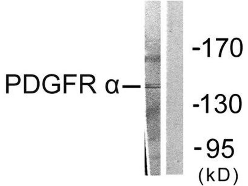 Western Blotting (WB) image for anti-PDGFRA antibody (Platelet-Derived Growth Factor Receptor, alpha Polypeptide) (C-Term) (ABIN1848738)