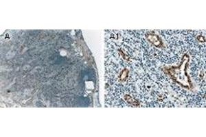 image for anti-MAP3K5 antibody (Mitogen-Activated Protein Kinase Kinase Kinase 5) (AA 1198-1216) (ABIN957210)