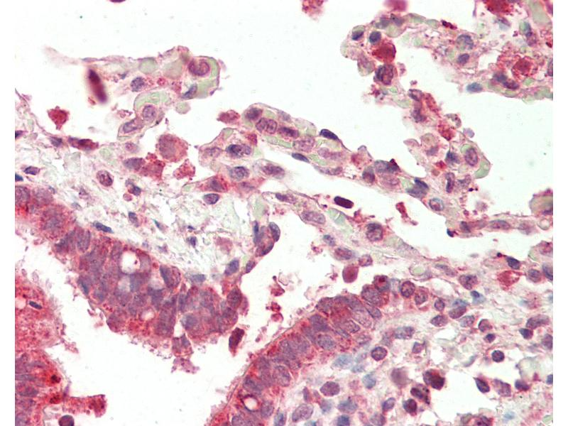 Immunohistochemistry (IHC) image for anti-Nuclear Factor of Activated T-Cells, Cytoplasmic, Calcineurin-Dependent 4 (NFATC4) (N-Term) antibody (ABIN1917041)