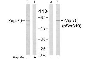 image for anti-ZAP70 antibody (zeta-Chain (TCR) Associated Protein Kinase 70kDa) (Tyr319) (ABIN197385)