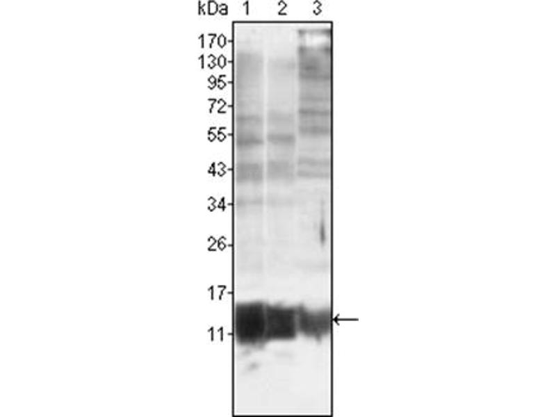 Western Blotting (WB) image for anti-S100A10 antibody (S100 Calcium Binding Protein A10) (ABIN1108919)