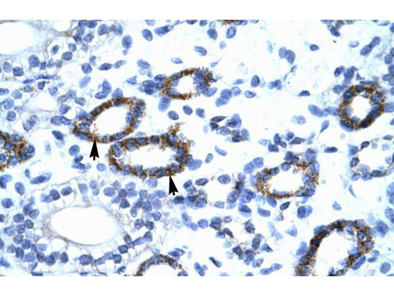 Immunohistochemistry (IHC) image for anti-General Transcription Factor IIF, Polypeptide 2, 30kDa (GTF2F2) (C-Term) antibody (ABIN1107467)